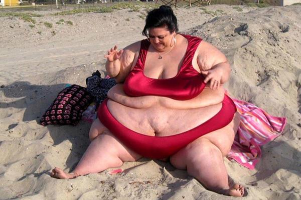 Patty Sanchez aimait tellement son fiancé que tous les jours, elle ingurgitait plus de 13 000 calories. Pour sauver sa peau, Patty Sanchez a été contrainte de prendre une décision radicale : quitter son fiancé. Une décision salvatrice : Patty a perdu plus de 100 kilos en quelques mois et avoue se porter à merveille.