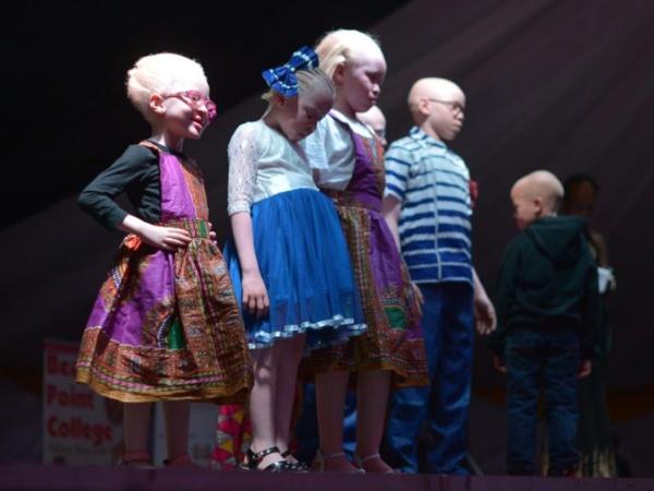 Des enfants albinos