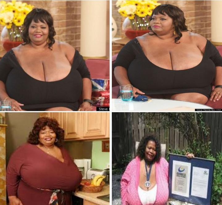 Insolite : Ses deux seins pèsent 50 kilos, la femme à la plus forte poitrine naturelle au Monde