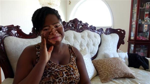 Peggy Laurore atteinte du vitiligo   PHOTO : HÉLOÏSE BARGAIN/ RADIO-CANADA