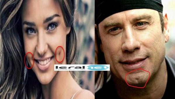 ce que révèlent les fossettes sur les joues des femmes sur le menton des hommes