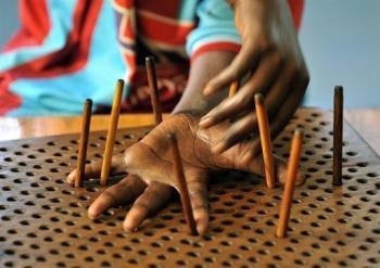 L'unique léproserie du Sénégal soigne gratuitement des malades marginalisés