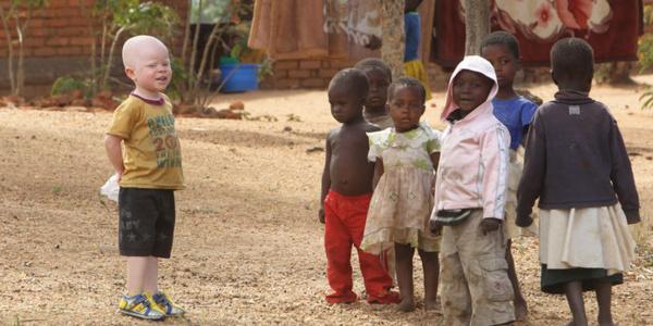COMMUNIQUE DE PRESSE-Dans le cadre de ses activités d'aide et de soutien aux personnes les plus vulnérables : Talibés, personnes atteintes d'Albinisme, et personnes en situation de Handicap,