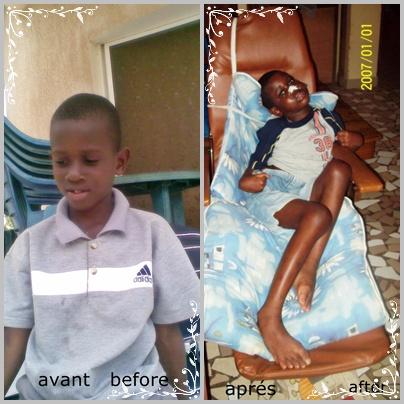 [SOS] PAPA IDRISSA NDIAYE est un jumeau de 9ans. Il a été victime d'un accident de la circulation. Après un mois de coma, il se retrouve en semi coma, il est devenu paraplégique. Aidons ce garçon !