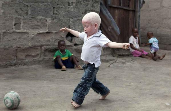 Élection législative de juillet prochain: La grande peur des albinos