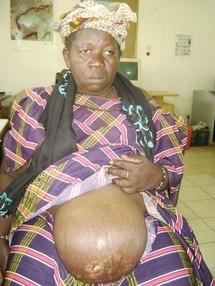 [Solidarité] SOS pour Awa Coulibaly : Elle souffre d'une hernie ombilicale et a besoin d'une intervention incessamment