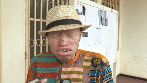 Ziguinchor : A quelques jours des élections législatives, les albinos réclament la protection de l'Etat