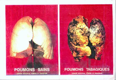 Sénégal : de nouveaux paquets de cigarettes avec des avertissements contre le tabagisme