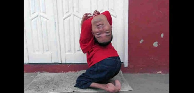 Brésil: Grâce à sa mère, cet homme né la tête à l'envers, est un modèle (Vidéo)