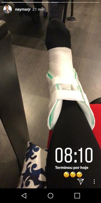 PSG: Neymar dévoile une photo de sa cheville blessée