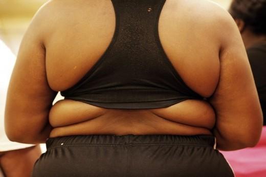 Obésité : 1 femme sur 4 touchée