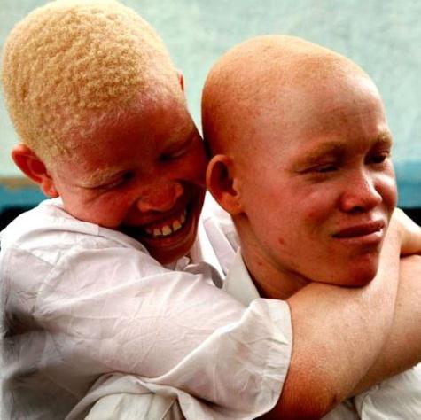 """Journée mondiale de sensibilisation à l'albinisme: """"Stop aux stigmatisations et aux agressions"""""""