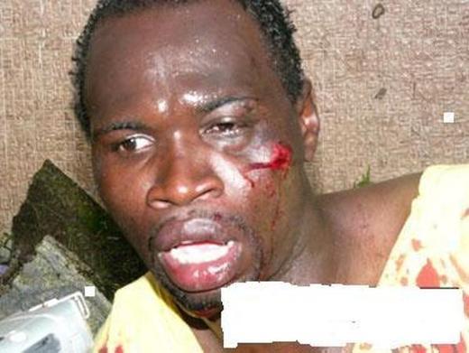 ITALIE: Un jeune sénégalais sauvagement agressé par des italiens