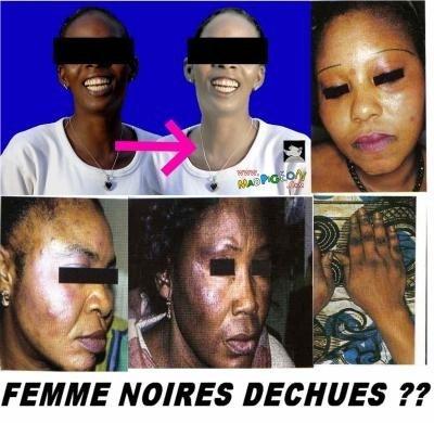 Le khessal : une pratique sénégalaise agressive qui se conjugue au féminin