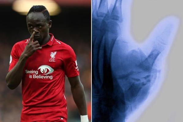 Liverpool – Blessure au pouce : 3 mois d'arrêt pour Sadio Mané ?