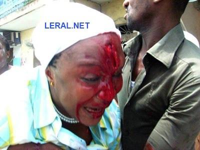 [Exclusif] La chanteuse Aicha Koné tabassée par les Jeunes patriotes