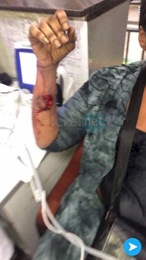 10 photos: La dame agressée en Chine par sa coépouse (âmes sensibles s'abstenir)