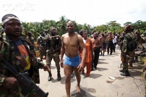 Côte d'Ivoire: De nouvelles images Des atrocités commises par les deux camps (Photo inédite de Désiré Tagro après avoir reçu une balle en pleine figure)