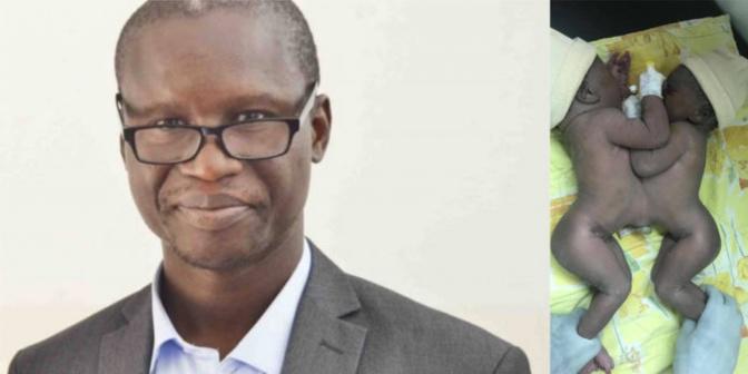 Pr. Gabriel Ngom: « Comment j'ai séparé les deux sœurs collées à la naissance »