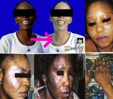 La dépigmentation a la peau dure