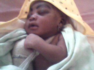 DRAME A L'HOPITAL HEINRICH LUBKE REGIONAL DE DIOURBEL: Un nouveau-né sort de la maternité, l'avant-bras fracturé