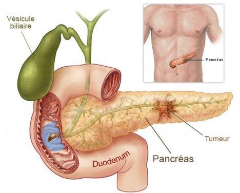 Cancer du pancréas : quels sont les facteurs de risque ?