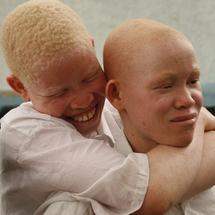 L'autre partie de l'histoire sur l'albinisme au Sénégal
