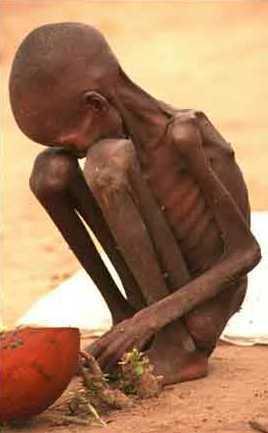 Malnutrition : L'Unicef demande « urgemment » 65,7 millions de dollars pour aider plus d'un million d'enfant