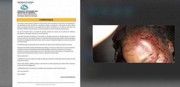 Sédhiou: Une sage-femme agressée par deux Kankourang