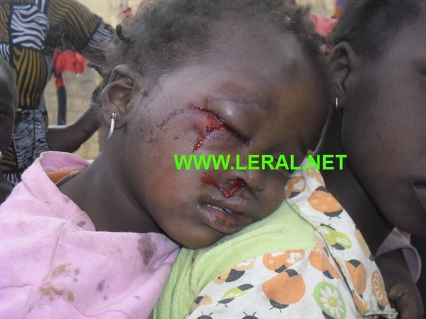 Témoignages de la mère de la petite fille (EN PHOTO) de Thiès devenue borgne - «Je demande au chef de l'Etat de soigner ma fille»