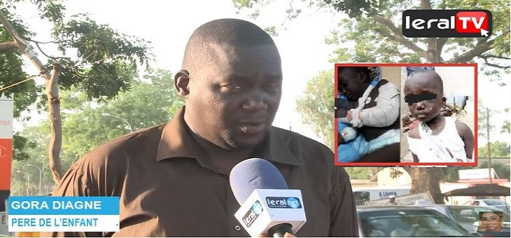 EXCLUSITE LERAL - Nouvelle révélation du père de l'enfant maltraité à Mbour