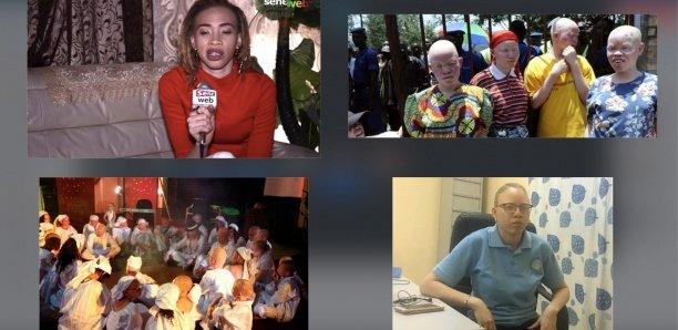 Femmes albinos : A la merci des prédateurs sexuels…