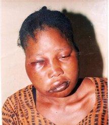 Affaire de la femme battue de Thiès : Le mari relaxé !
