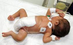 Le bébé né avec six jambes opéré avec succès