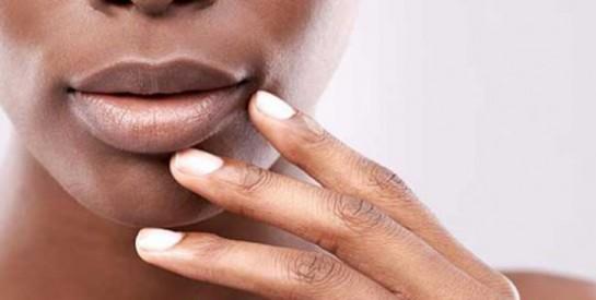 Avec l'harmattan, essayez cette astuce pour ne plus avoir les lèvres gercées