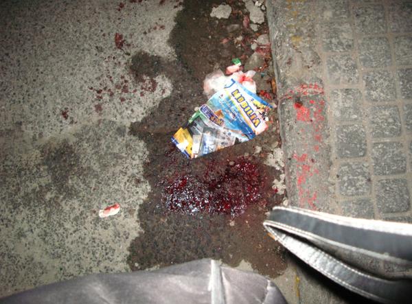 INCROYABLE : Des agresseurs suceurs de sang dans la banlieue de Dakar