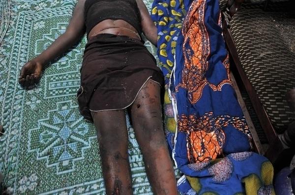 Bignona : une jeune fille battue à mort par son tuteur