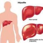 Traitement des hépatites virales : Essayez le Terminalia catappa, le Tinospora, le Tamarindus…