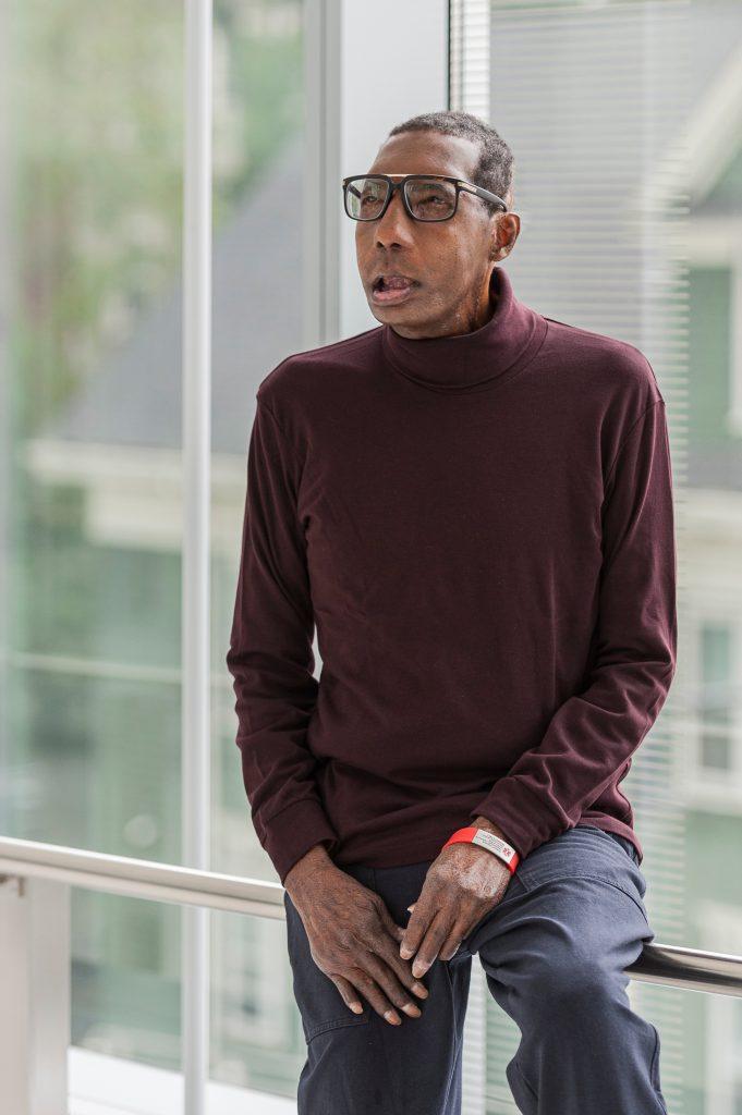 Après 18 interventions chirurgicales, il devient le premier Afro-Américain à recevoir une greffe au visage