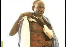 Touba : Babacar Mbaye Diouf atteint d'une maladie mystérieuse :« des bestioles sortent de mon corps »