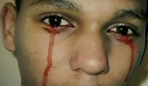 Il pleure des larmes de sang!