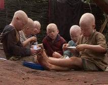 Plainte: Les Albinos veulent traduire en justice les criminels