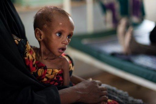 Clôture d'une formation sur la malnutrition sévère aigue, samedi à Thiès