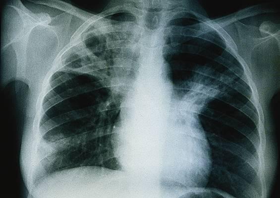 Thiès : La tuberculose tue : Les autorités jugent la situation non alarmante