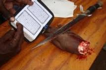 Mali - A Gao, l'horreur des amputations au nom de la charia