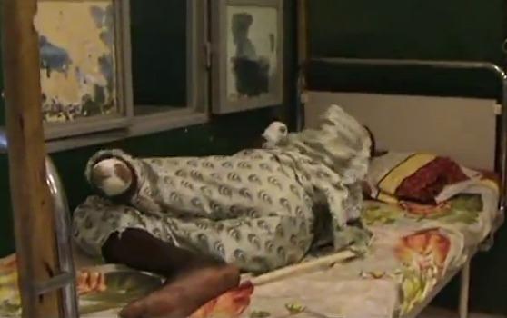 Les images choc des amputés du Nord-Mali (VIDEO)