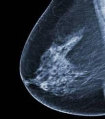 Cancer du sein : 75% des cas détectés tardivement