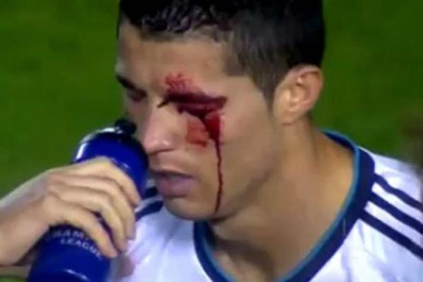 Real Madrid : CR7 donne de ses nouvelles