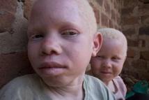 Quand les Albinos du Sénégal se fâchent