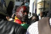 Victimes des violences policières lors du processus électoral de 2012 : Vers une indemnisation des victimes par l'Etat du Sénégal.
